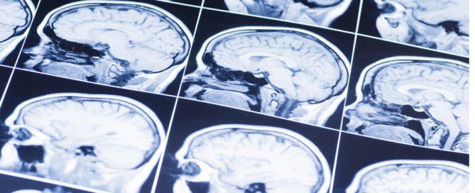 brain injury scans